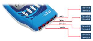 compra aqui los electroestimuladores karter catalogo completo
